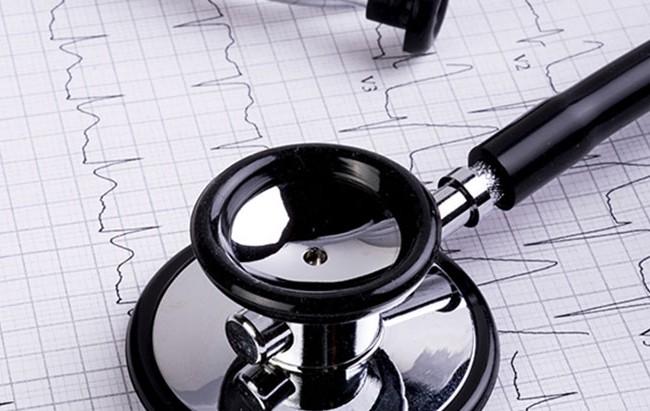 Eletrocardiograma Computadorizado